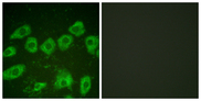 Immunofluorescence analysis of HUVEC cells, using Tyrosine Hydroxylase Antibody. The picture on the right is blocked with the synthesized peptide.