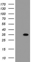 HEK293T cells were transfected with the pCMV6-ENTRY control (Left lane) or pCMV6-ENTRY THAP6 (Right lane) cDNA for 48 hrs and lysed. Equivalent amounts of cell lysates (5 ug per lane) were separated by SDS-PAGE and immunoblotted with anti-THAP6.