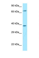 THEMIS antibody Western blot of Jurkat Cell lysate. Antibody concentration 1 ug/ml.  This image was taken for the unconjugated form of this product. Other forms have not been tested.