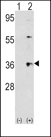 Western blot of THPO (arrow) using rabbit polyclonal THPO Antibody. 293 cell lysates (2 ug/lane) either nontransfected (Lane 1) or transiently transfected with the THPO gene (Lane 2) (Origene Technologies).