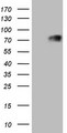 HEK293T cells were transfected with the pCMV6-ENTRY control (Left lane) or pCMV6-ENTRY THRA (Right lane) cDNA for 48 hrs and lysed. Equivalent amounts of cell lysates (5 ug per lane) were separated by SDS-PAGE and immunoblotted with anti-THRA.