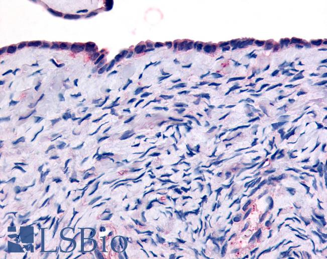 Anti-THRA antibody LS-A6194 IHC of human surface epithelium. Immunohistochemistry of formalin-fixed, paraffin-embedded tissue after heat-induced antigen retrieval.