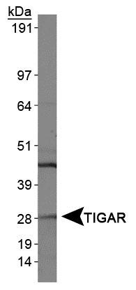 Western Blot: TIGAR Antibody - Analysis of TIGAR in HeLa whole cell extracts.  This image was taken for the unconjugated form of this product. Other forms have not been tested.