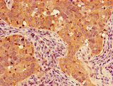Immunohistochemistry of paraffin-embedded human pancreatic cancer using TIGAR Antibody at dilution of 1:100