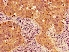 TIGAR Antibody - Immunohistochemistry of paraffin-embedded human pancreatic cancer using TIGAR Antibody at dilution of 1:100