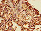 Immunohistochemistry of paraffin-embedded human lung cancer using TIGAR Antibody at dilution of 1:100