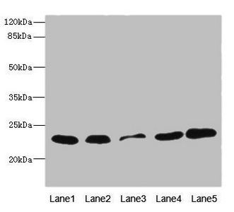 Western blot All Lanes: TIMM23 antibody at 3.03ug/ml Lane 1: Mouse heart tissue Lane 2: Mouse liver tissue Lane 3: A431 whole cell lysate Lane 4: MCF7 whole cell lysate Lane 5: Jurkat whole cell lysate Secondary Goat polyclonal to rabbit IgG at 1/10000 dilution Predicted band size: 22 kDa Observed band size: 22 kDa