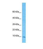 Western blot of Human 721_B. TIMM10 antibody dilution 1.0 ug/ml.  This image was taken for the unconjugated form of this product. Other forms have not been tested.