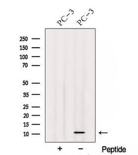 TIMM13 Antibody - Western blot analysis of extracts of PC-3 cells using TIMM13 antibody. The lane on the left was treated with blocking peptide.