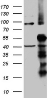 TIMM50 Antibody - HEK293T cells were transfected with the pCMV6-ENTRY control. (Left lane) or pCMV6-ENTRY TIMM50. (Right lane) cDNA for 48 hrs and lysed. Equivalent amounts of cell lysates. (5 ug per lane) were separated by SDS-PAGE and immunoblotted with anti-TIMM50. (1:2000)