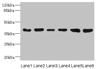 Western blot All Lanes: TIMM50 antibody at 4.05ug/ml Lane 1: Ret heart tissue Lane 2: Human breast cancer cell lines Lane 3: MCF7 whole cell lysate Lane 4: Hela whole cell lysate Lane 5: 293T whole cell lysate Lane 6: HepG-2 whole cell lysate Secondary Goat polyclonal to rabbit IgG at 1/10000 dilution Predicted band size: 40,51,28 kDa Observed band size: 40 kDa