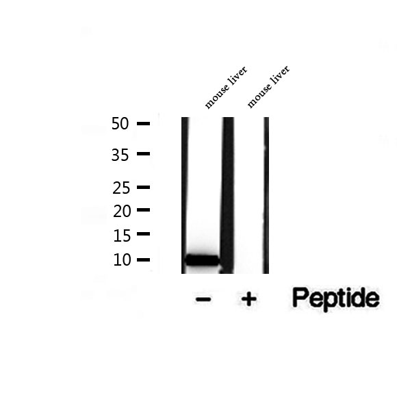 TIMM9 Antibody - Western blot analysis of extracts of mouse liver tissue using TIMM9 antibody.
