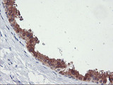 IHC of paraffin-embedded Human breast tissue using anti-TIMP2 mouse monoclonal antibody.
