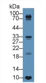 TIMP4 Antibody - Western Blot; Sample: Human BXPC3 cell lysate; Primary Ab: 5µg/ml Rabbit Anti-Porcine TIMP4 Antibody Second Ab: 0.2µg/mL HRP-Linked Caprine Anti-Rabbit IgG Polyclonal Antibody