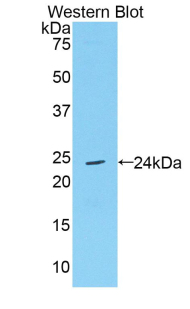 TIMP4 Antibody - Western blot of recombinant TIMP4.  This image was taken for the unconjugated form of this product. Other forms have not been tested.