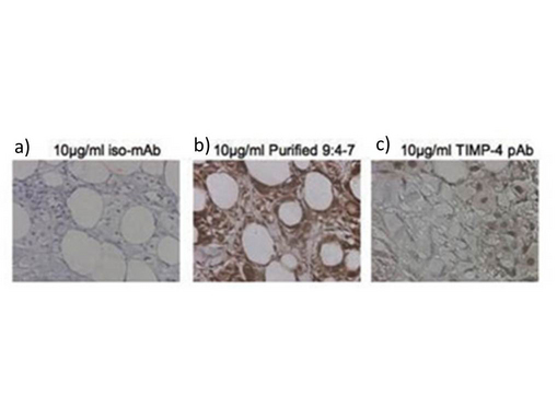 TIMP4 Antibody - Immunohistochemistry of Mouse Anti-TIMP4 Antibody. Tissue: human breast carcinoma. Fixation: formalin fixed paraffin embedded. Antigen retrieval: not required. Primary antibody: a) isotype specific IgG2bk monoclonal; b) TIMP-4 antibody; and c) TIMP-4 each at 10 µg/mL. Secondary antibody: Peroxidase mouse secondary antibody at 1:10,000 for 45 min at RT. Localization: TIMP-4 is secreted. Staining: TIMP-4 as precipitated brown signal.