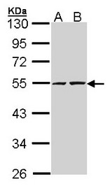Sample (30 ug of whole cell lysate). A: A431. B: H1299. 10% SDS PAGE. RUVBL2 antibody diluted at 1:5000.