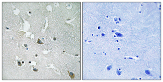 Immunohistochemistry analysis of paraffin-embedded human brain, using TIRAP (Phospho-Tyr86) Antibody. The picture on the right is blocked with the phospho peptide.