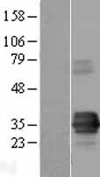 TIRAP Protein - Western validation with an anti-DDK antibody * L: Control HEK293 lysate R: Over-expression lysate