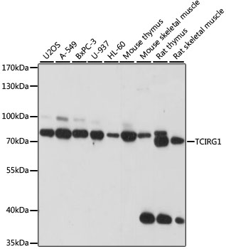TIRC7 / TCIRG1 Antibody - Western blot analysis of extracts of various cell lines, using TCIRG1 antibody at 1:1000 dilution. The secondary antibody used was an HRP Goat Anti-Rabbit IgG (H+L) at 1:10000 dilution. Lysates were loaded 25ug per lane and 3% nonfat dry milk in TBST was used for blocking. An ECL Kit was used for detection and the exposure time was 30s.