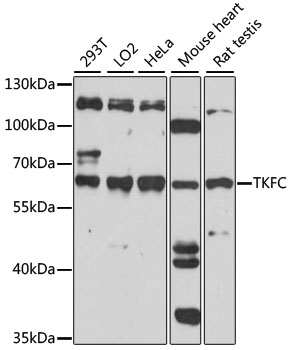 TKFC / DAK Antibody - Western blot analysis of extracts of various cell lines, using TKFC antibody. The secondary antibody used was an HRP Goat Anti-Rabbit IgG (H+L) at 1:10000 dilution. Lysates were loaded 25ug per lane and 3% nonfat dry milk in TBST was used for blocking. An ECL Kit was used for detection and the exposure time was 60s.