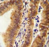 K1609 Antibody immunohistochemistry of formalin-fixed and paraffin-embedded human uterus tissue followed by peroxidase-conjugated secondary antibody and DAB staining.