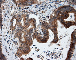 IHC of paraffin-embedded Adenocarcinoma of colon tissue using anti-KIAA1609 mouse monoclonal antibody. (Dilution 1:50).