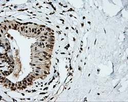 IHC of paraffin-embedded breast tissue using anti-KIAA1609 mouse monoclonal antibody. (Dilution 1:50).