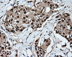 IHC of paraffin-embedded Adenocarcinoma of breast tissue using anti-KIAA1609 mouse monoclonal antibody. (Dilution 1:50).