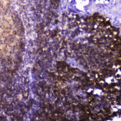 TLN1 / Talin 1 Antibody - IHC testing of FFPE human tonsil tissue with Talin 1 antibody at 2ug/ml. HIER: boil tissue sections in pH6, 10mM citrate buffer, for 10-20 min followed by cooling at RT for 20 min.