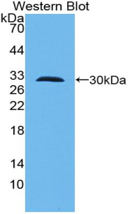 TLR10 Antibody - Western blot of recombinant TLR10.