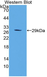 TLR2 Antibody - Western blot of recombinant TLR2.