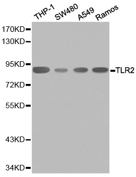 TLR2 Antibody - Western blot analysis of extracts of various cell lines, using TLR2 antibody. The secondary antibody used was an HRP Goat Anti-Rabbit IgG (H+L) at 1:10000 dilution. Lysates were loaded 25ug per lane and 3% nonfat dry milk in TBST was used for blocking.