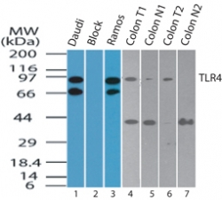 TLR4 Antibody - Western blot of TLR4 in Daudi cell lysate in the 1) absence and 2) presence of immunizing peptide, 3) Ramos cell lysate, 4) human colon tumor lysate.