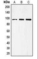 TLR4 Antibody - Western blot analysis of CD284 expression in COLO205 (A); PC3 (B); HepG2 (C) whole cell lysates.