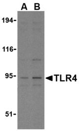 TLR4 Antibody - Western blot of TLR4 in PC-3 cell lysates with TLR4 antibody at (A) 2.5 and (B) 5 ug/ml.