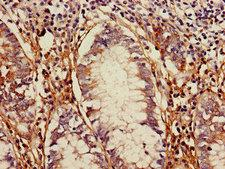 TLR5 Antibody - Immunohistochemistry of paraffin-embedded human colon cancer using TLR5 Antibody at dilution of 1:100
