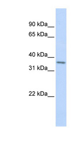 TLX1 antibody Western blot of Fetal Heart lysate. This image was taken for the unconjugated form of this product. Other forms have not been tested.