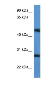 TM2D2 antibody LS-C135831 Western blot of Jurkat lysate.  This image was taken for the unconjugated form of this product. Other forms have not been tested.