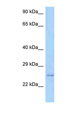 TM2D3 antibody Western blot of Mouse Heart lysate. Antibody concentration 1 ug/ml.  This image was taken for the unconjugated form of this product. Other forms have not been tested.