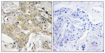 Immunohistochemistry analysis of paraffin-embedded human breast carcinoma tissue, using T4S1 Antibody. The picture on the right is blocked with the synthesized peptide.