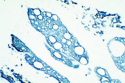 Tumor: Cytokeratin (s), VECTASTAIN® Elite® ABC Kit, TMB (blue).