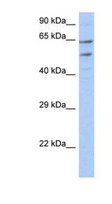 TMCC3 antibody Western blot of OVCAR-3 cell lysate. This image was taken for the unconjugated form of this product. Other forms have not been tested.