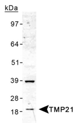 Detection of TMP21 in human liver lysate.  This image was taken for the unconjugated form of this product. Other forms have not been tested.