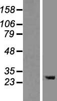 TMEM106B Protein - Western validation with an anti-DDK antibody * L: Control HEK293 lysate R: Over-expression lysate