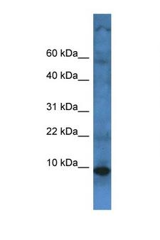 TMEM141 Antibody - TMEM141 antibody Western blot of Fetal Liver lysate. Antibody concentration 1 ug/ml.  This image was taken for the unconjugated form of this product. Other forms have not been tested.
