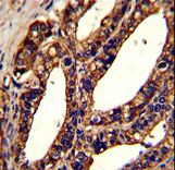 TMEM142A / ORAI1 Antibody - Formalin-fixed and paraffin-embedded human prostate carcinoma reacted with ORAI1 Antibody , which was peroxidase-conjugated to the secondary antibody, followed by DAB staining. This data demonstrates the use of this antibody for immunohistochemistry; clinical relevance has not been evaluated.