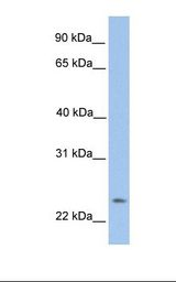 TMEM142A / ORAI1 Antibody - HepG2 cell lysate. Antibody concentration: 1.0 ug/ml. Gel concentration: 12%.  This image was taken for the unconjugated form of this product. Other forms have not been tested.