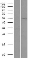 TMEM161A Protein - Western validation with an anti-DDK antibody * L: Control HEK293 lysate R: Over-expression lysate