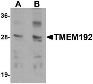 Western blot analysis of TMEM192 in SK-N-SH cell lysate with TMEM192 antibody at (A) 0.5 and (B) 1 ug/ml.